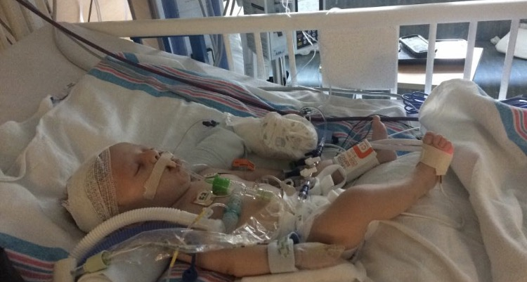 baby hospitalized from fire_384485