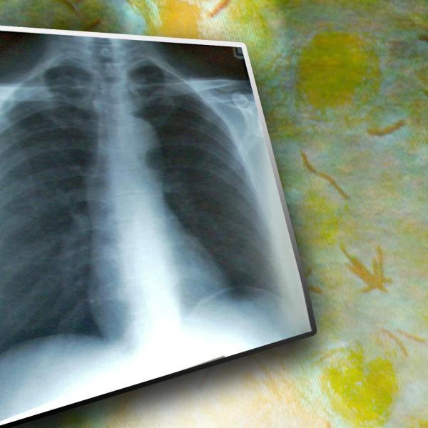 Tuberculosis_143244