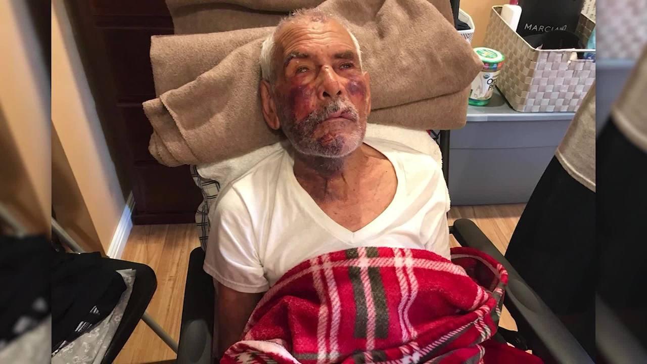 91_year_old_man_beaten_with_brick_0_48174563_ver1.0_1280_720_1531329883183.jpg