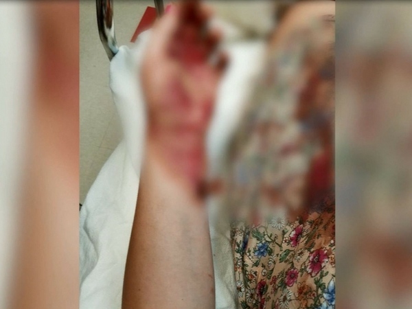 13-year-old Washington girl injured by plastic bottle explosion