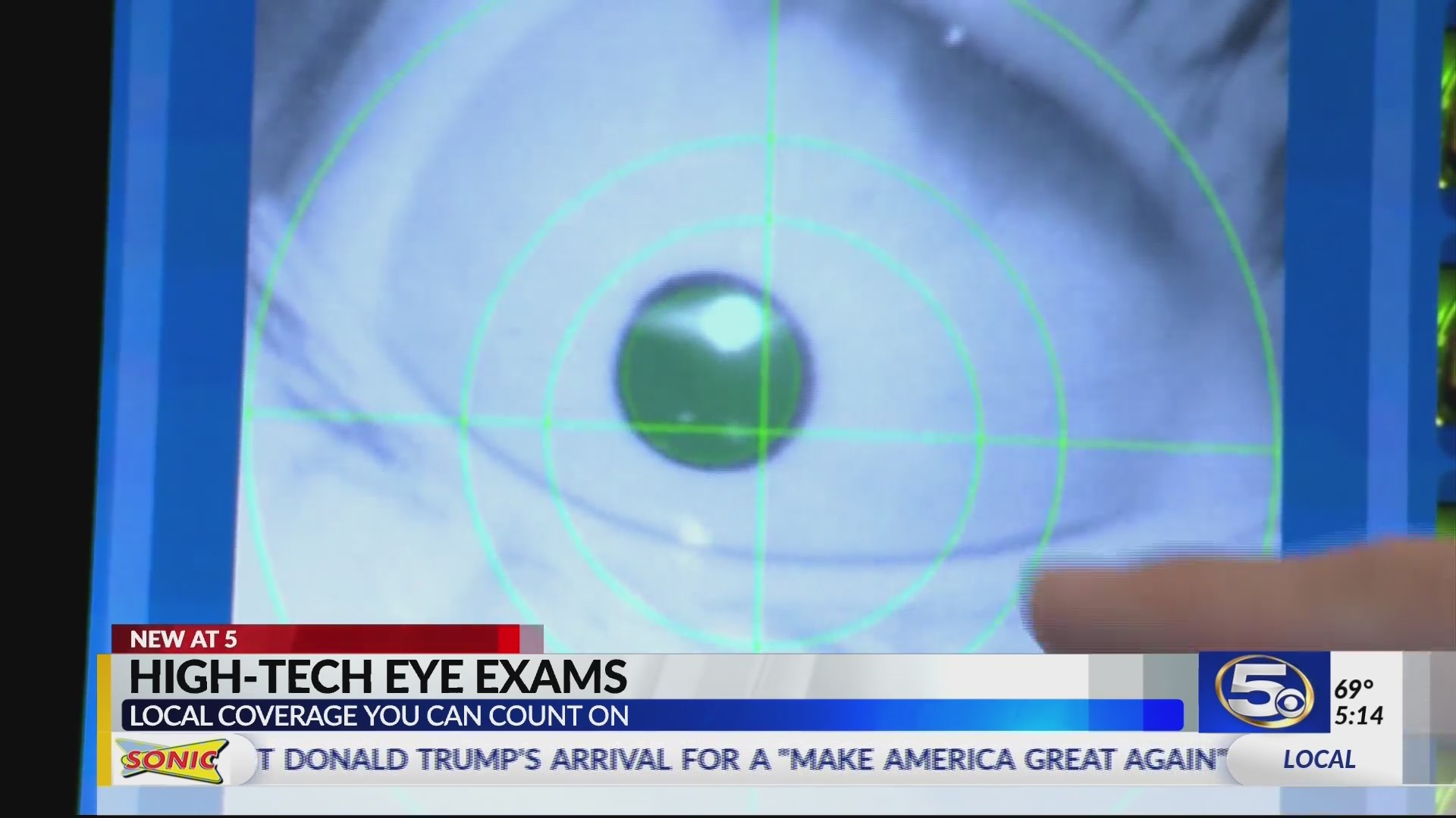 SPECIAL REPORT: High tech eye exam detects cancers, other serious ailments