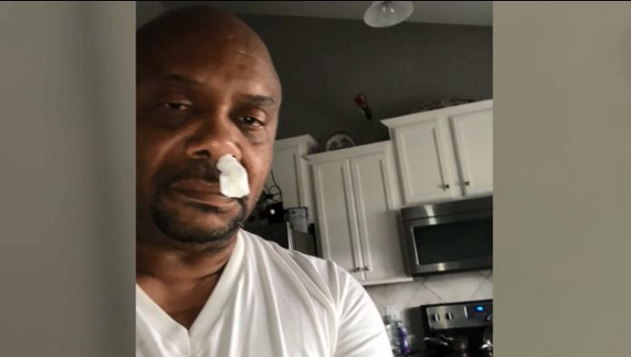 VIDEO: Man's runny nose turns out to be leaky brain