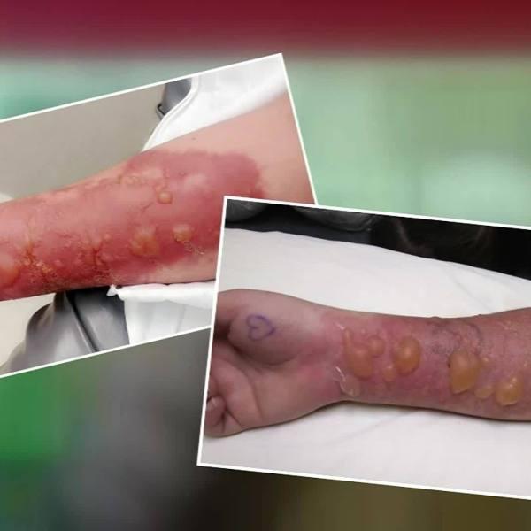 Salt and Ice challenge causes severe burns