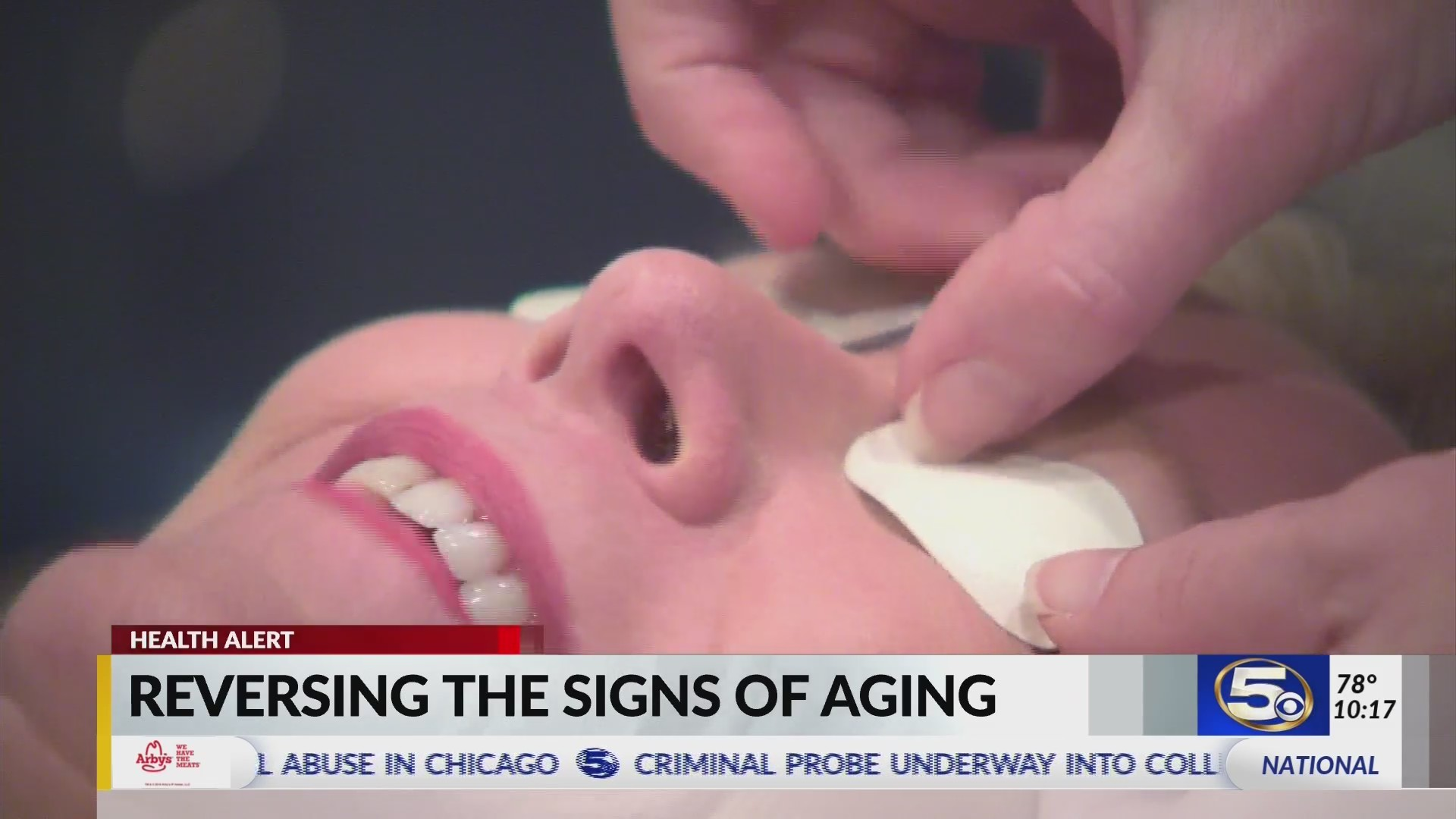 VIDEO: Reversing the signs of aging on your skin